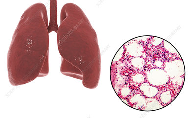 Human lungs anatomy and histology, illustration
