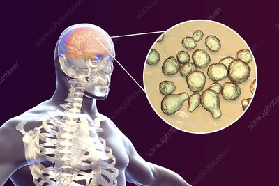 Fungal meningitis, illustration