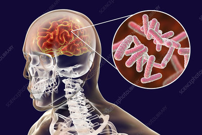Bacterial encephalitis, illustration