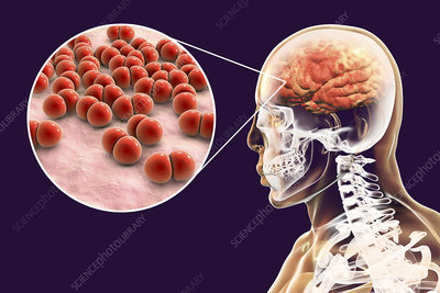 Brain infection caused by Streptococcus pneumoniae bacteria,