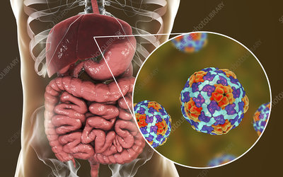 Hepatitis A infection, illustration