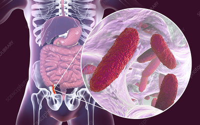 Appendicitis, illustration