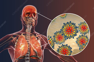 Measles complications, conceptual illustration