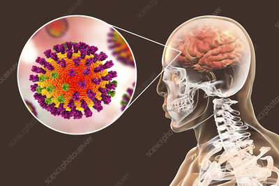 Encephalitis caused by flu virus, conceptual illustration