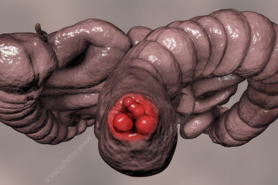 Haemorrhoids, illustration