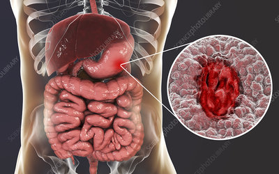 Gastric ulcer, illustration