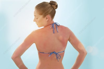 Woman with sunburnt back