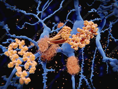 Amyloid protein in Alzheimer's disease, illustration