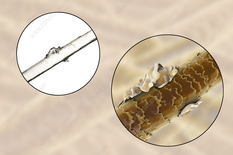Human hair with dandruff, illustration and micrograph