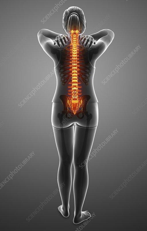 Back pain woman. stock photo. Image of backache, chronic