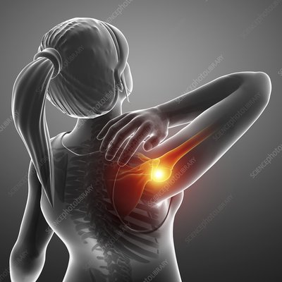 Woman with a painful shoulder, illustration