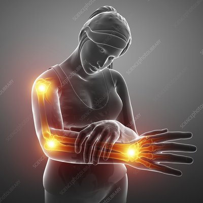 Woman with arm pain, illustration