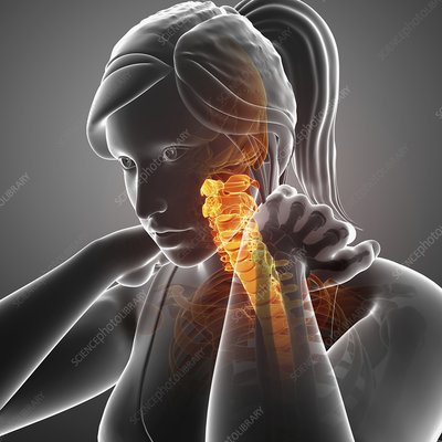 Woman with neck pain, illustration