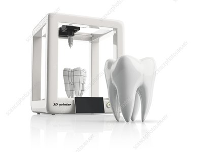 3D model of tooth, illustration