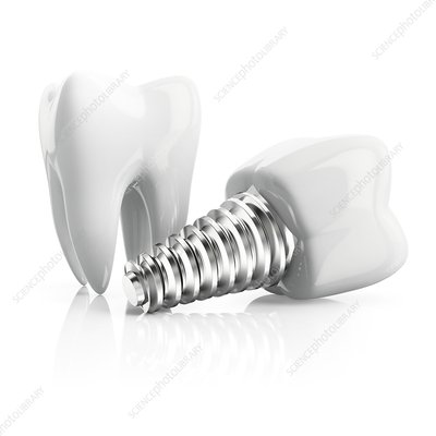 Tooth implant, illustration