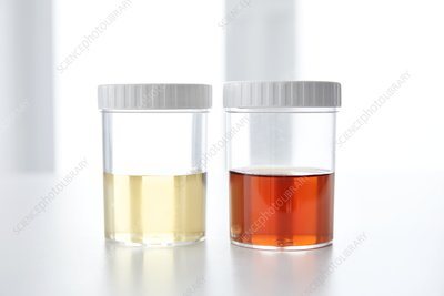 Blood in human urine in sample pot