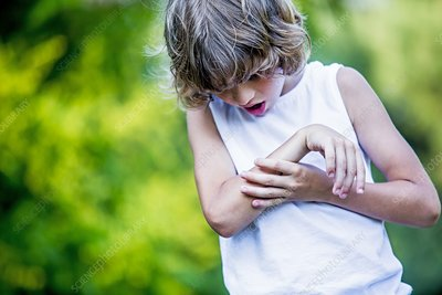 Young boy scratching arm