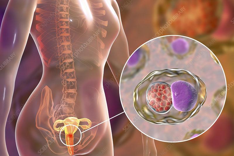 Chlamydia infection, illustration