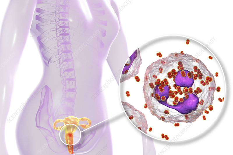 Gonorrhoea infection in female, illustration