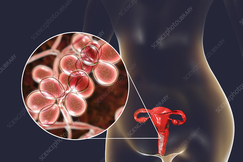 Candida albicans infection in female, illustration