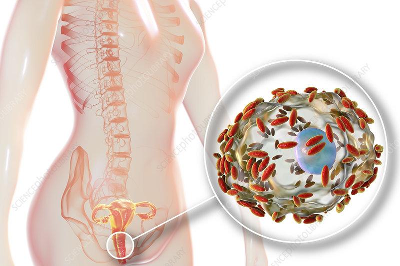 Bacterial vaginosis, illustration