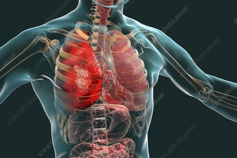 Pneumonia, illustration