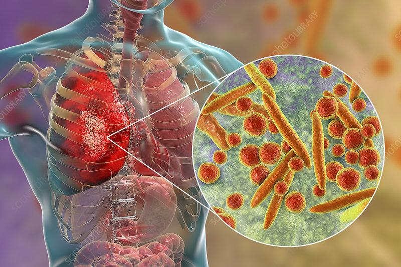 Pneumonia caused by Moraxella catarrhalis, illustration