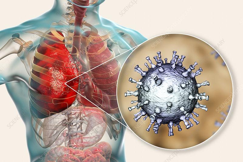 Pneumonia caused by Varicella zoster virus, illustration