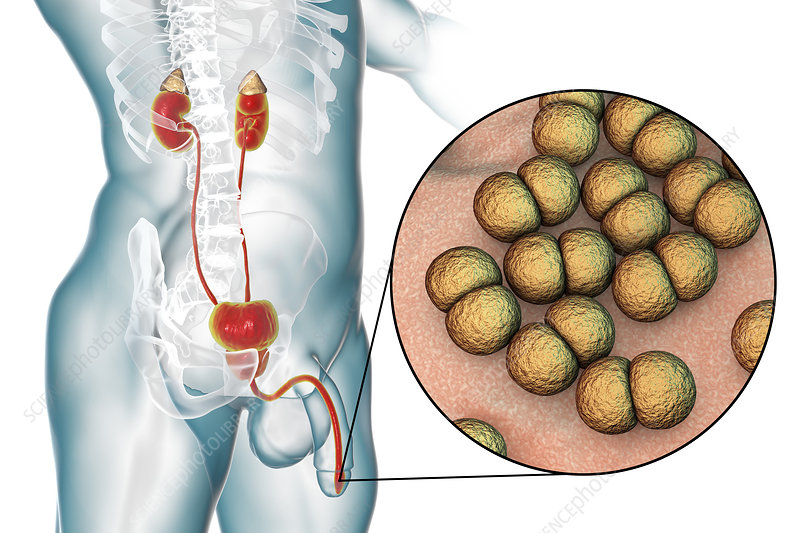 Gonorrhoea infection in male, illustration