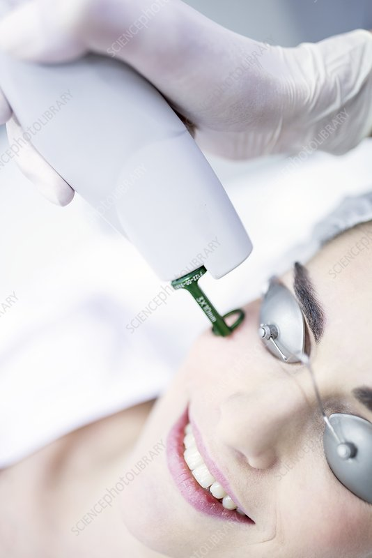Dermatologist using laser machine