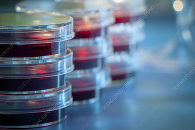 Petri dishes in microbiology lab