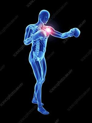 Illustration of an athlete's painful shoulder