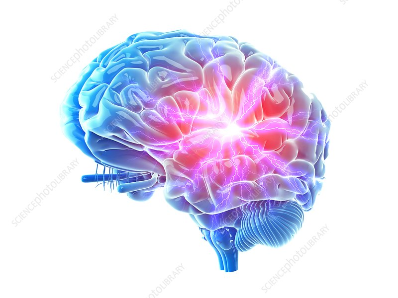 Illustration of a painful brain