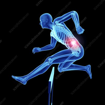 Illustration of an athlete's painful back