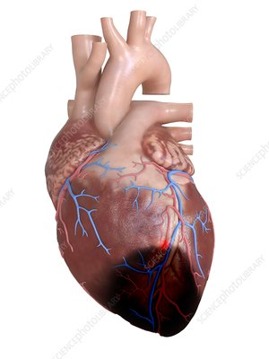 Illustration of a heart attack