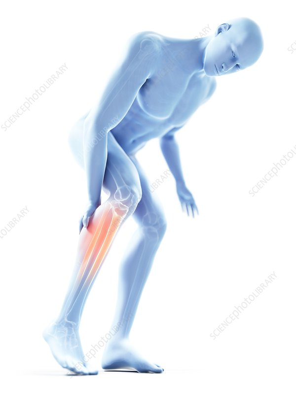 Illustration of a man with a painful calf