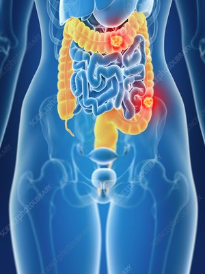 Illustration of female colon cancer