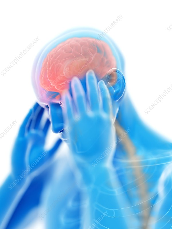 Illustration of a man with a headache