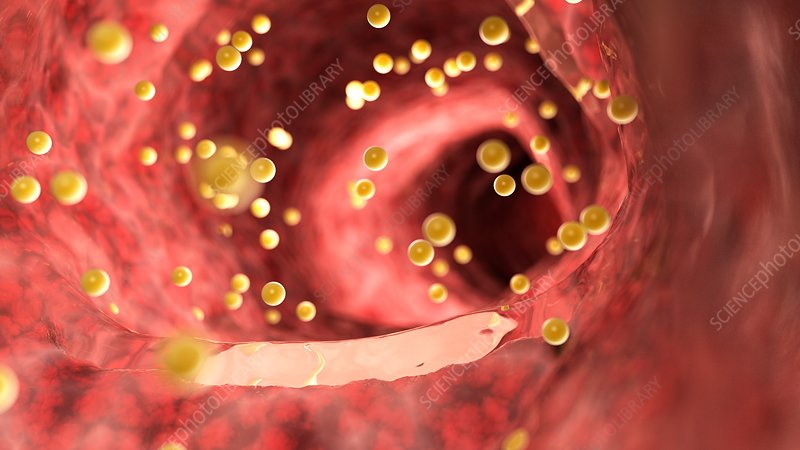 Illustration of gluten inside the colon
