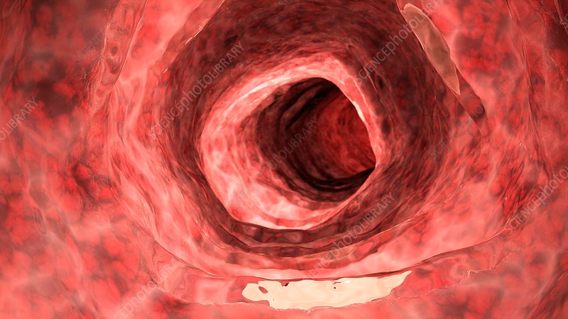 Illustration of an inflamed colon