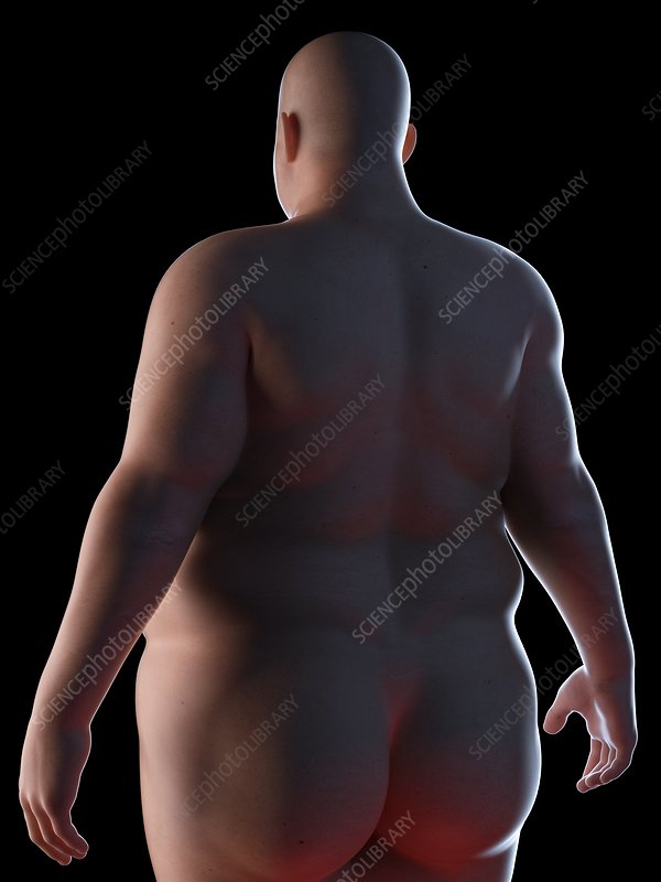 Illustration of an obese man