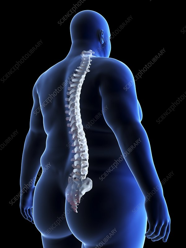 Illustration of an obese man's spine