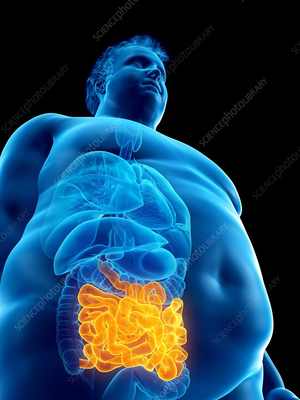Illustration of an obese man's intestine