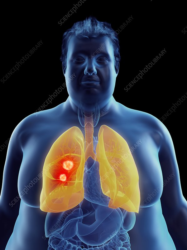 Illustration of an obese man's lung tumor