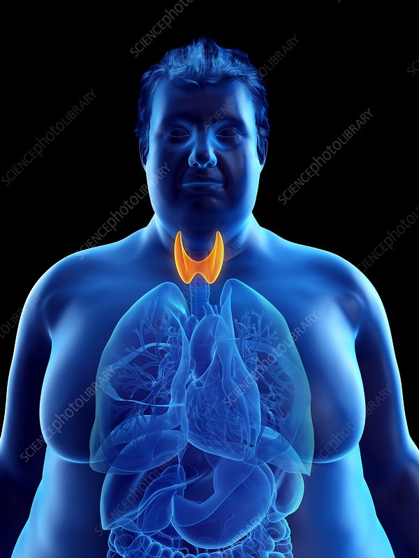 Illustration of an obese man's thyroid gland