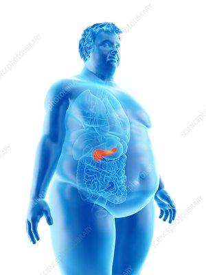 Illustration of an obese man's pancreas