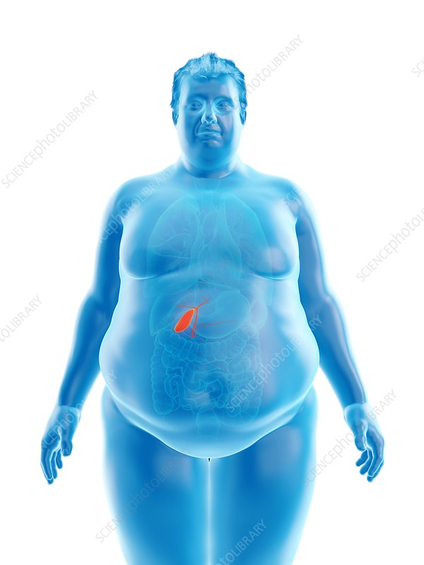 Illustration of an obese man's gallbladder