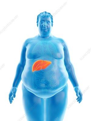 Illustration of an obese man's liver