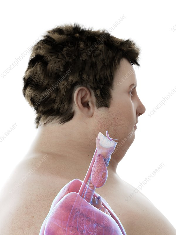 Illustration of an obese man's throat anatomy