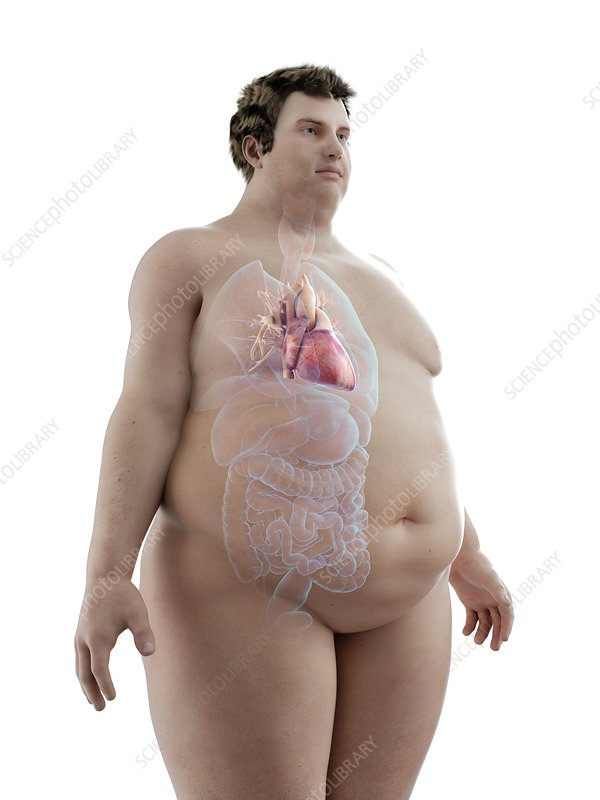 Illustration of an obese man's heart